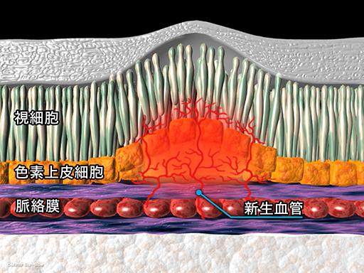 PDT(光線力学療法)[APNG]