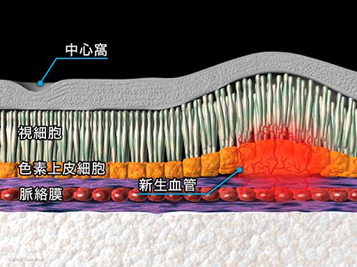 レーザー光凝固療法[APNG]