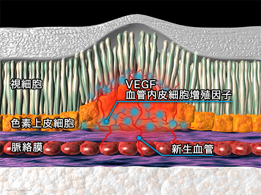 硝子体注射4