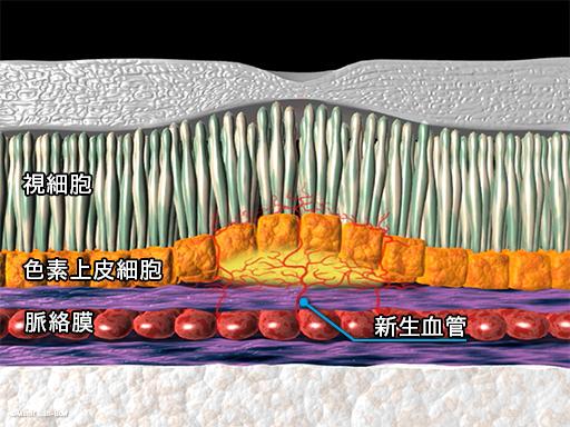 硝子体注射6