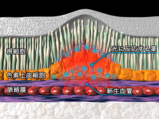 PDT(光線力学療法)2