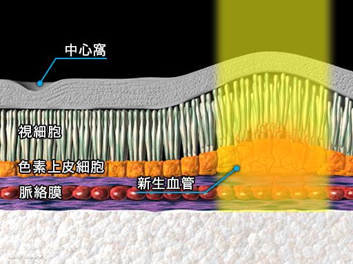 レーザー光凝固療法2