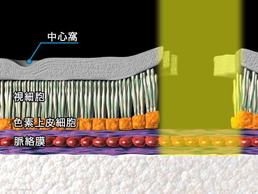 レーザー光凝固療法3