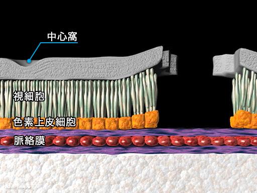 レーザー光凝固療法4