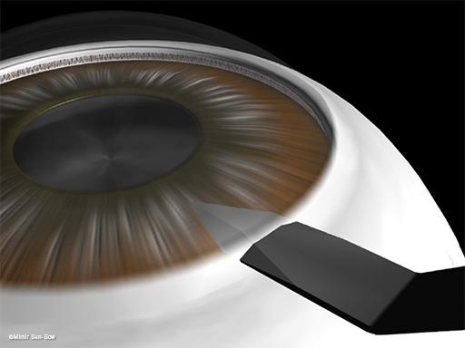 水晶体嚢外摘出術1