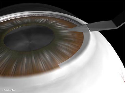 水晶体嚢外摘出術2