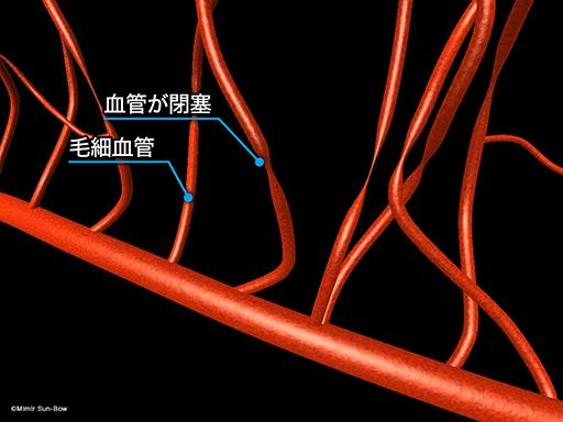 毛細血管/変形[APNG]