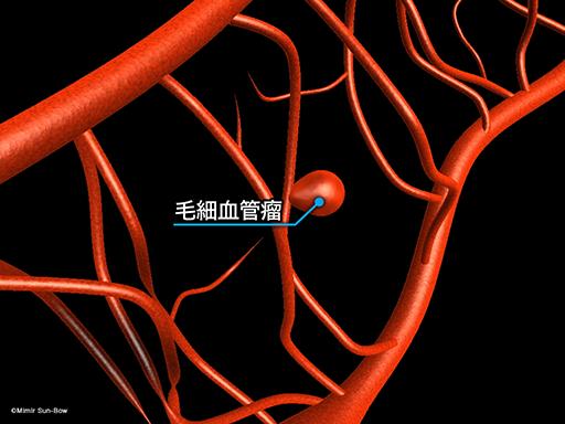 毛細血管瘤/出血[APNG]