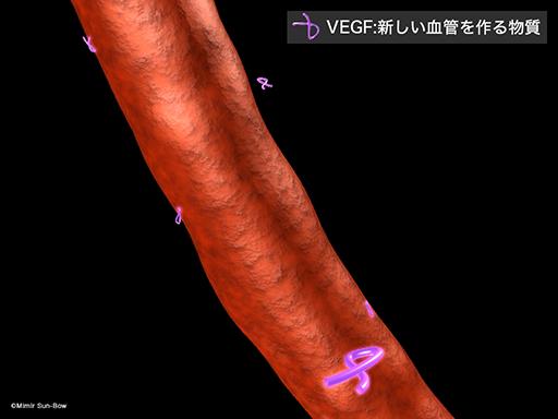 VEGFによる障害[APNG]