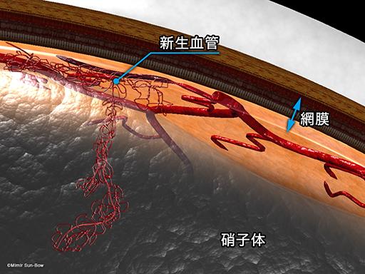 新生血管と硝子体1[APNG]