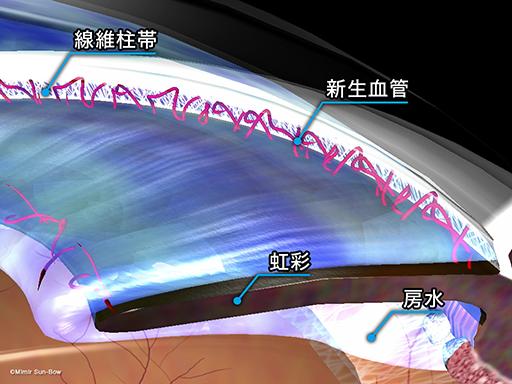 血管新生緑内障[APNG]