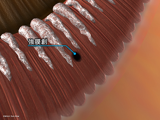 強膜創血管新生[APNG]