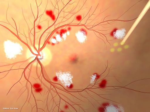 汎網膜光凝固術/眼底[APNG]