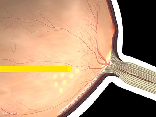 新生血管の再発[APNG]