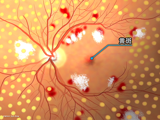 線維血管膜の再発[APNG]
