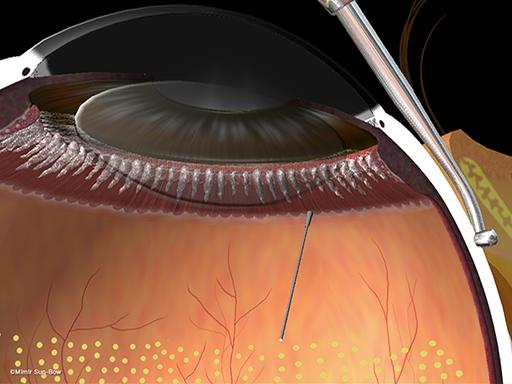 周辺部の眼内光凝固術[APNG]