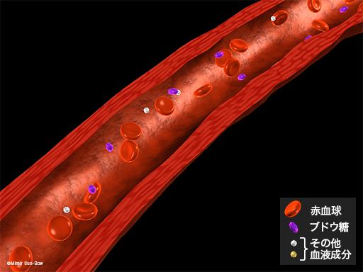大血管障害1