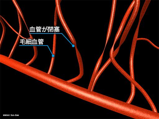 毛細血管/変形・瘤・閉塞1