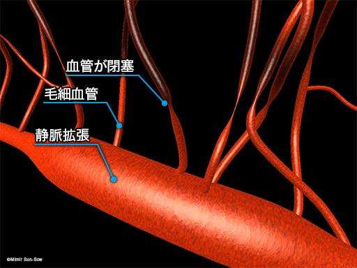 毛細血管/変形・瘤・閉塞2