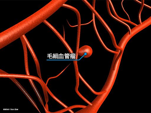 毛細血管/変形・瘤・閉塞3