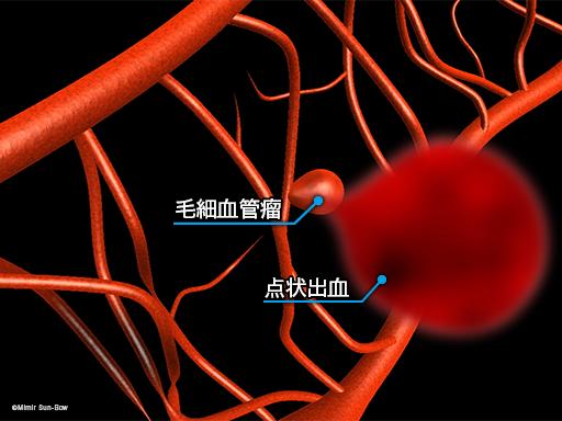 毛細血管/変形・瘤・閉塞4