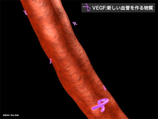 VEGFによる障害1