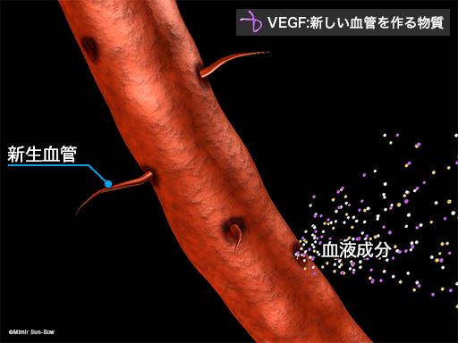 VEGFによる障害2