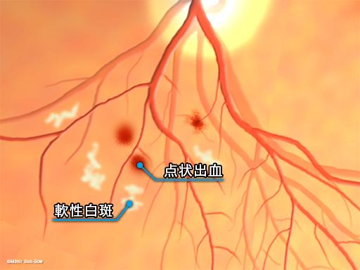 点状出血・軟性白斑