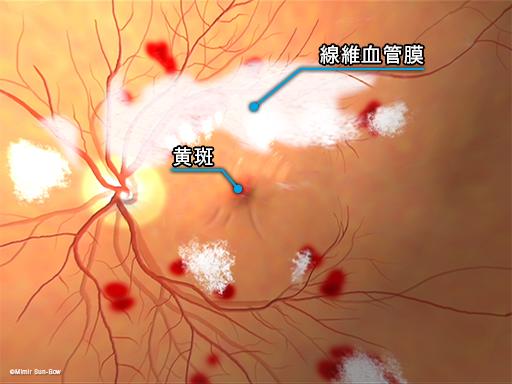黄斑の線維血管膜
