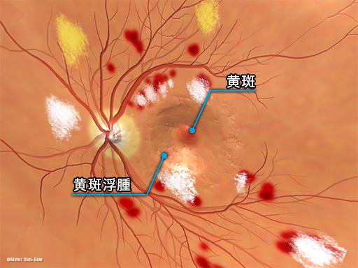 黄斑浮腫/眼底