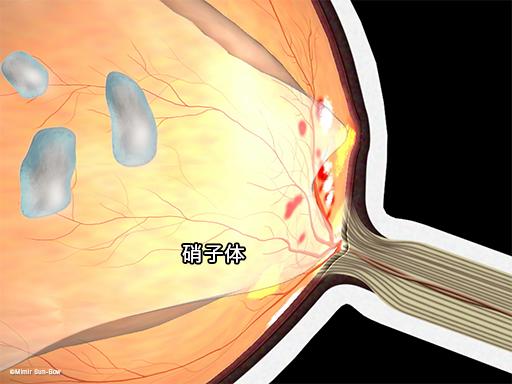 黄斑浮腫と硝子体1