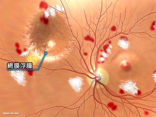 網膜浮腫/眼底