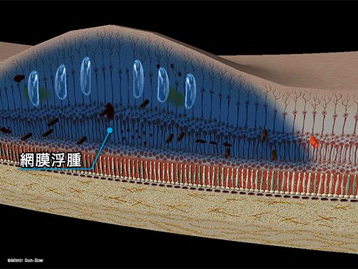 網膜浮腫の発生2