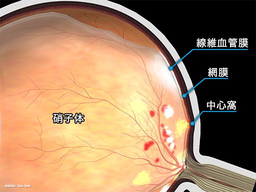 牽引性網膜剥離1