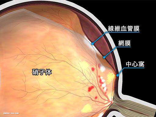 牽引性網膜剥離2