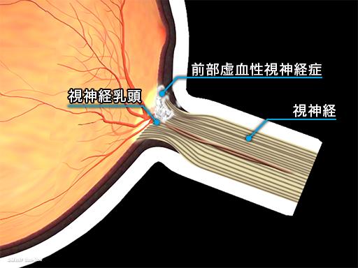 虚血性視神経症1