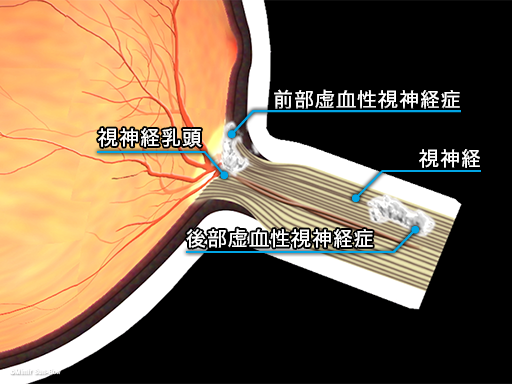 虚血性視神経症2