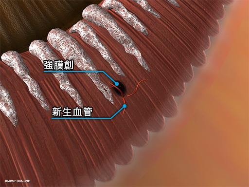 強膜創血管新生3