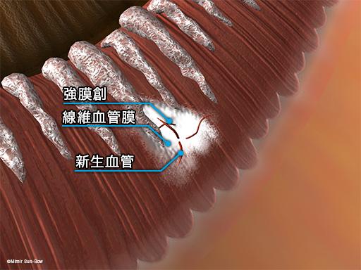 強膜創血管新生4