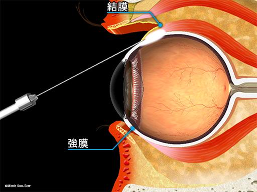 結膜下注射2