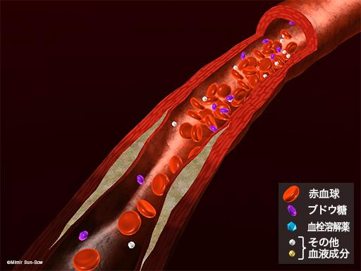 血栓溶解薬3
