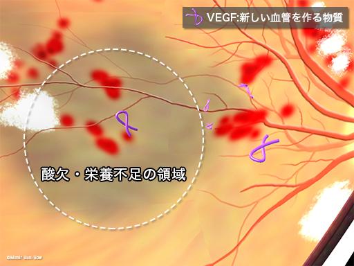 光凝固とVEGF1