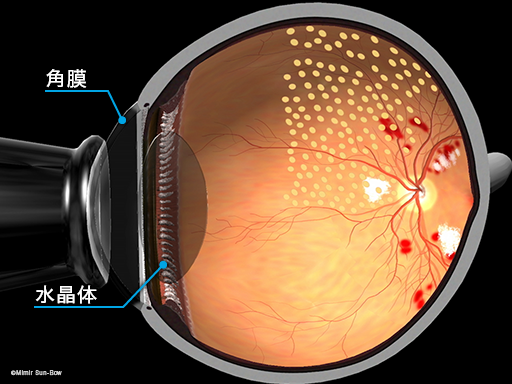 汎網膜光凝固術/断面2