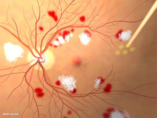 汎網膜光凝固術/眼底1