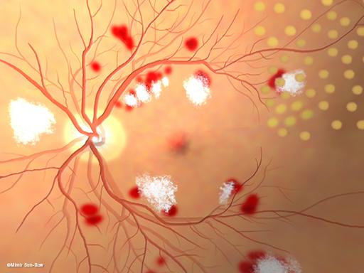 汎網膜光凝固術/眼底2