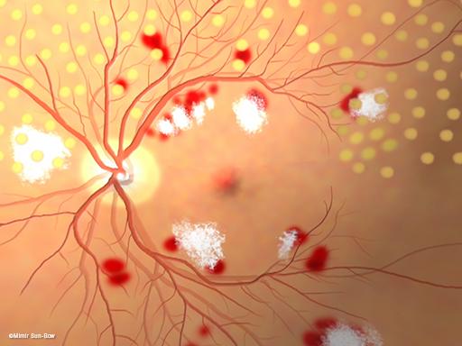 汎網膜光凝固術/眼底3