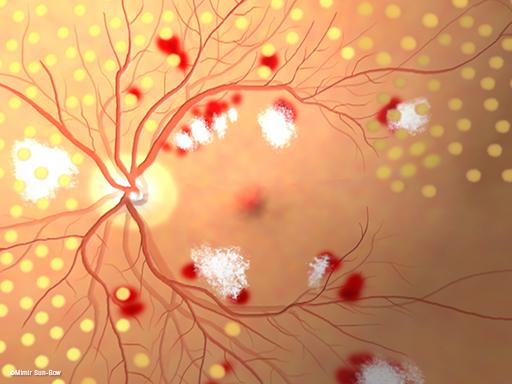 汎網膜光凝固術/眼底4