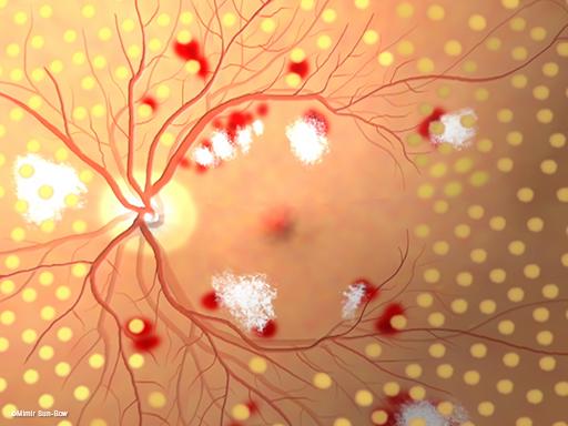 汎網膜光凝固術/眼底5
