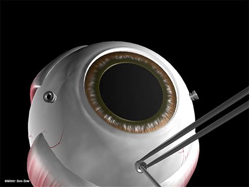 硝子体手術準備3