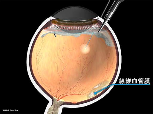 線維血管膜の除去1
